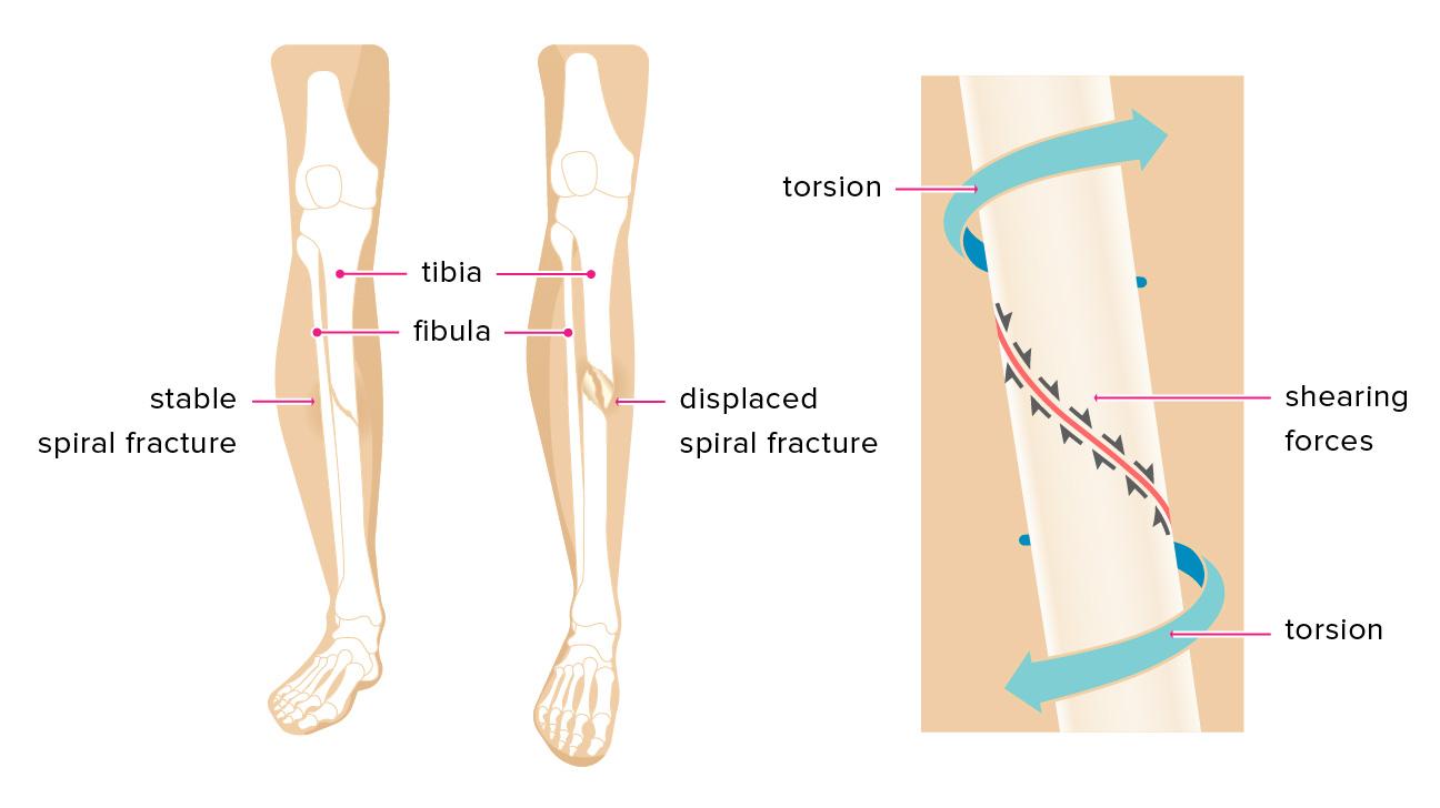 spiral fracture: healing time, tibia, and fibula, Human body
