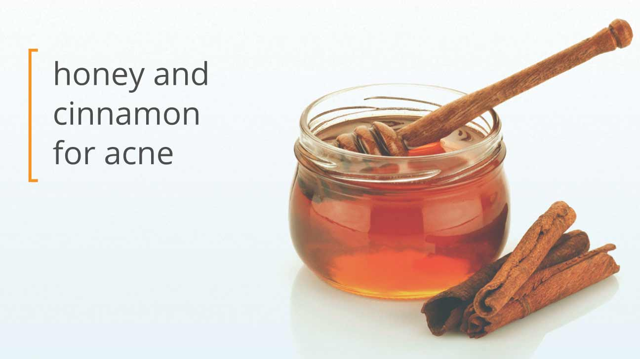 using honey and cinnamon for acne
