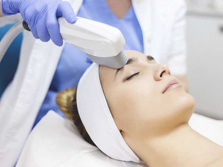preparation Laser treatment bikini