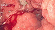 Gastric Adenocarcinoma (Stomach Cancer)