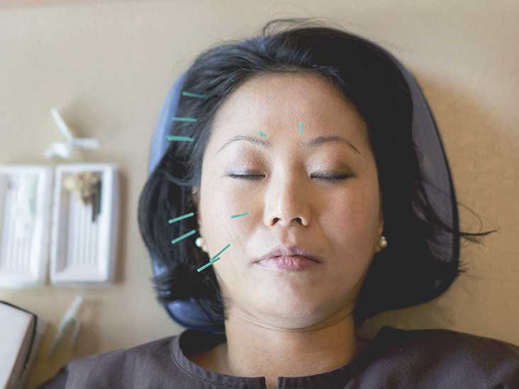 Acupuncture For Headaches And Migraines How It Works