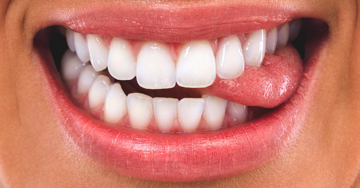 Bit Tongue Treatment, Prevention, and Prognosis