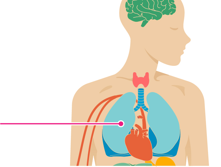 10 Effects Of Atrial Fibrillation On The Body
