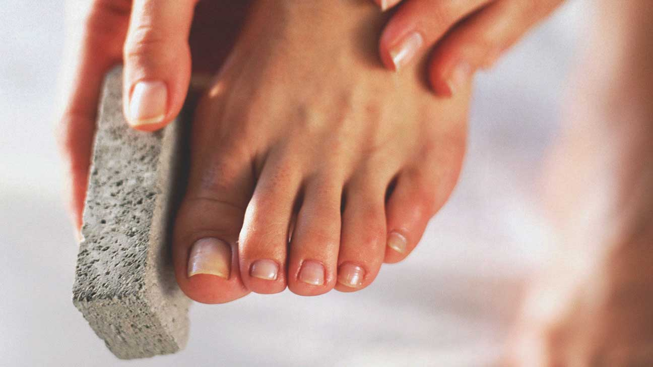How to Remove Dead Skin from Feet: 7