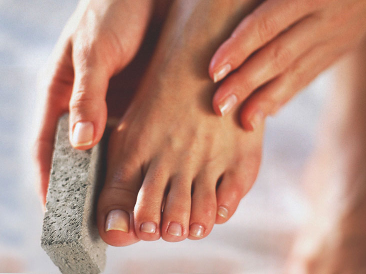 7 Ways to Remove Dead Skin from Your Feet