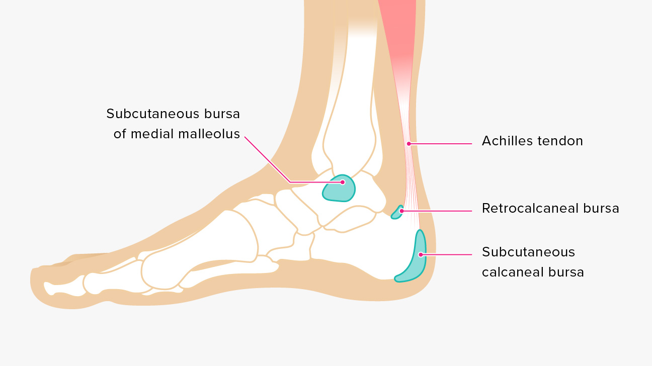 Bursitis Ankle Bursa Care And Prevention