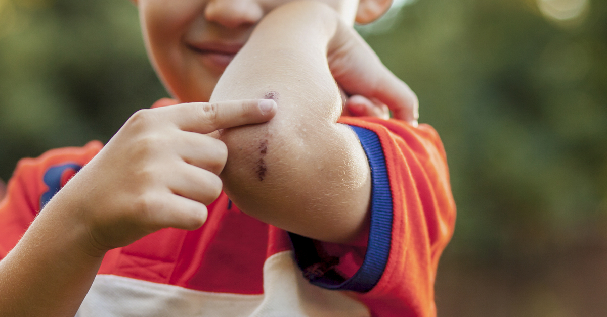 Picking Scabs: How to Stop Compulsive Picking and Heal Scars