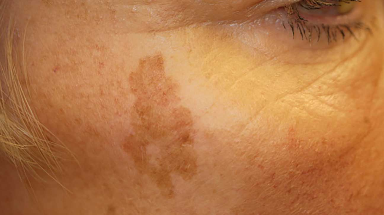 How Sunspots Are Burned Off the Face With Liquid Nitrogen