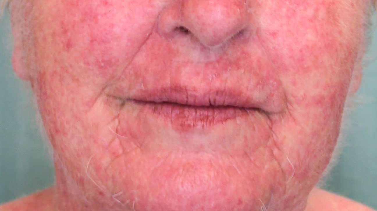 Allergic Contact Dermatitis Symptoms Causes Pictures And More