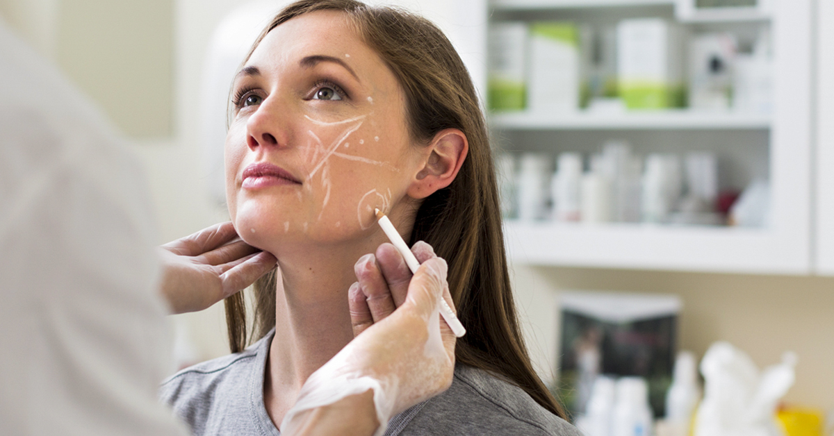 What Are the Side Effects of Facial Fillers?