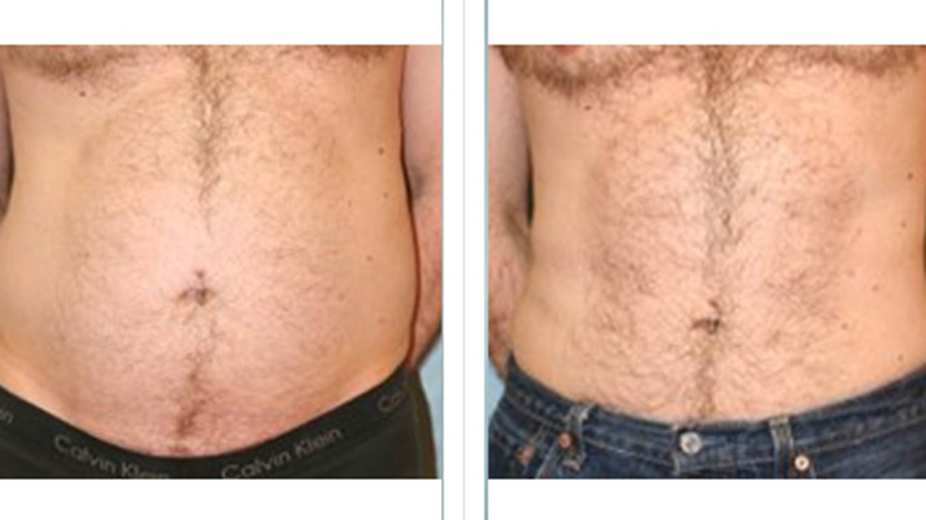 Laser Lipo Vs Coolsculpting