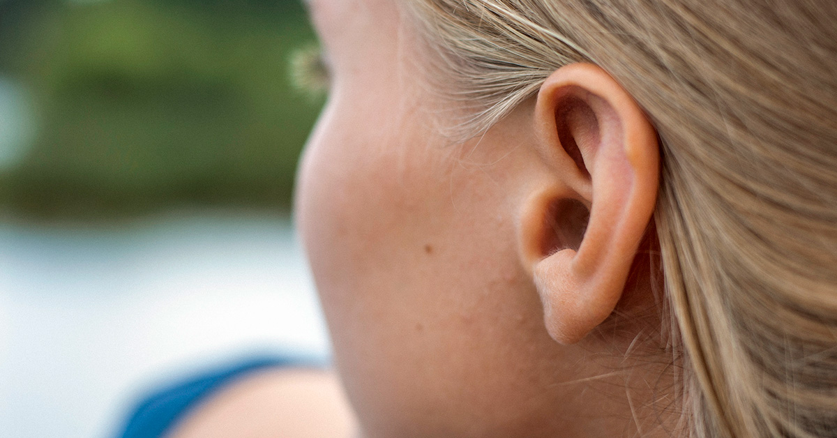 Hole in Ear: Symptoms, Causes, and Treatment of Preauricular Pits