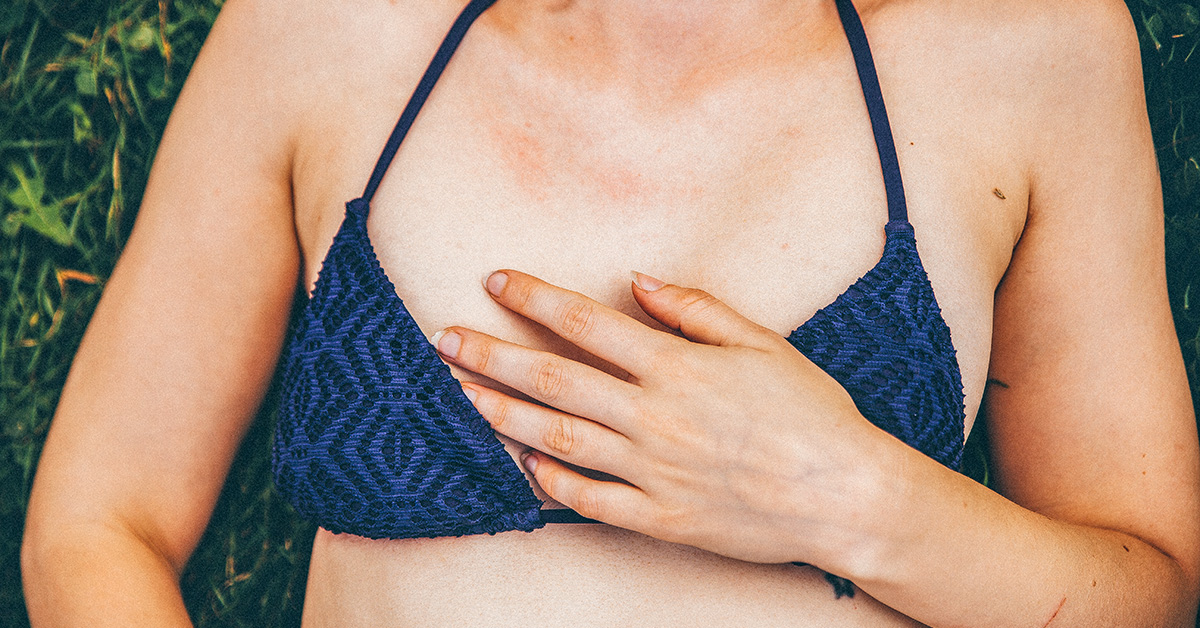 Keto Rash: What It Is, Why It Happens, and How to Cure It