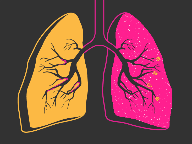 copd stages causes treatment and more
