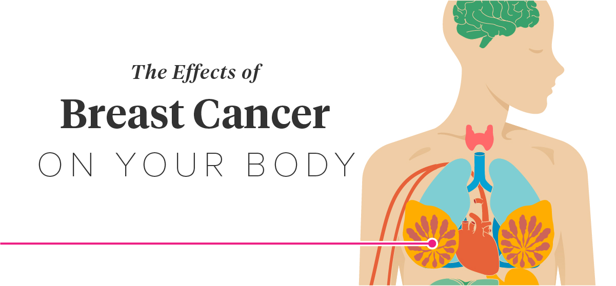 12 Effects of Breast Cancer on the Body