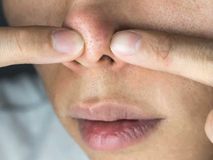 Red Spot On Nose Acne Cancer And Other Causes