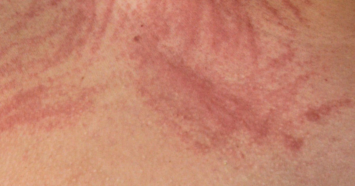 Dermatographia: Symptoms, Causes, Treatment, and More