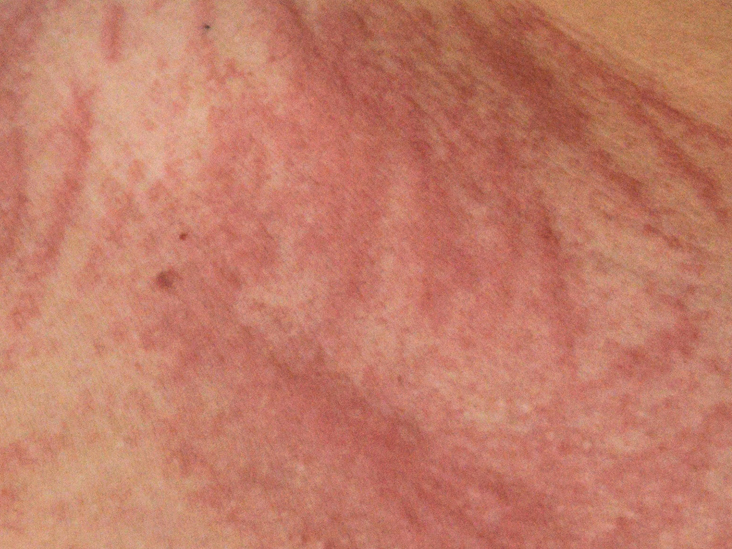 Dermatographia Symptoms Causes Treatment And More