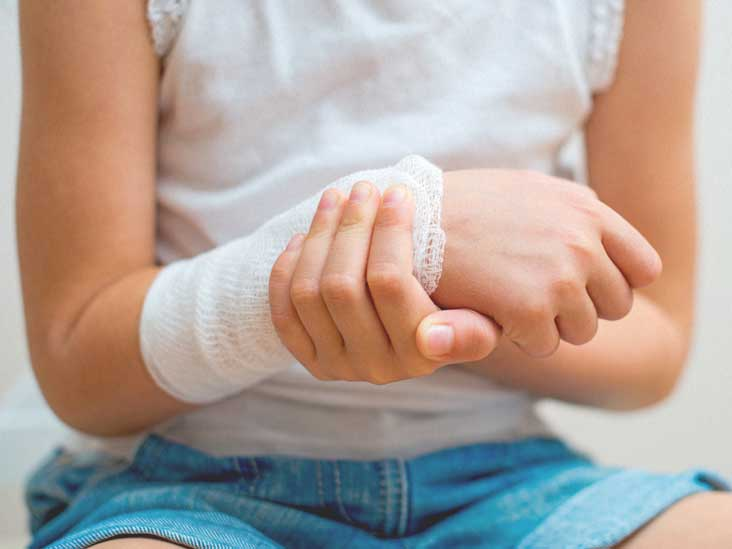 Salter Harris Fracture: Types, Treatment, and More