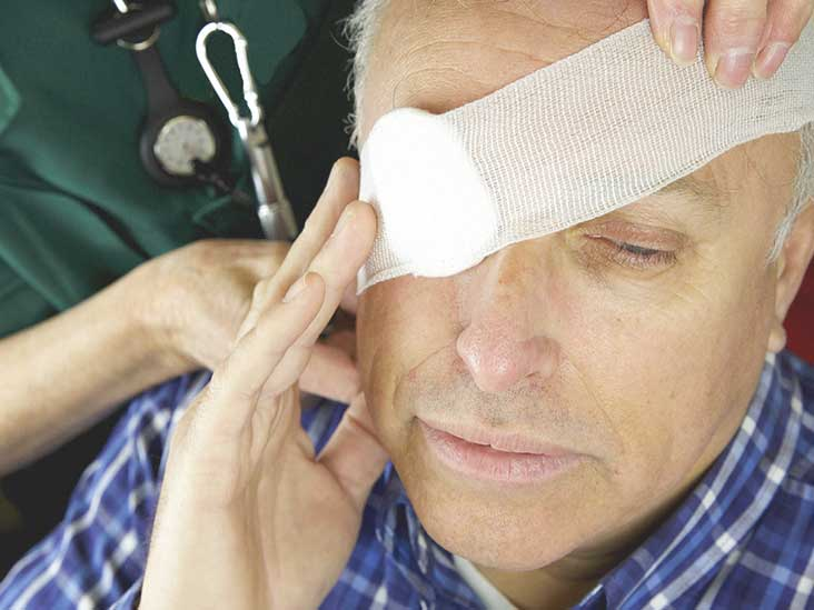 Broken Eye Socket: Picture, Treatment, Recovery