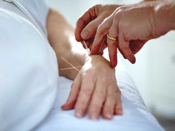 Image result for acupuncture points for shingles nerve pain