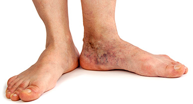 Foot & Leg Ulcers - Natural Skin Care Treatments | Aidance