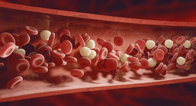 Know the Facts About Venous Thromboembolism