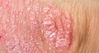 Rash On Genitals Causes Treatments And Outlook