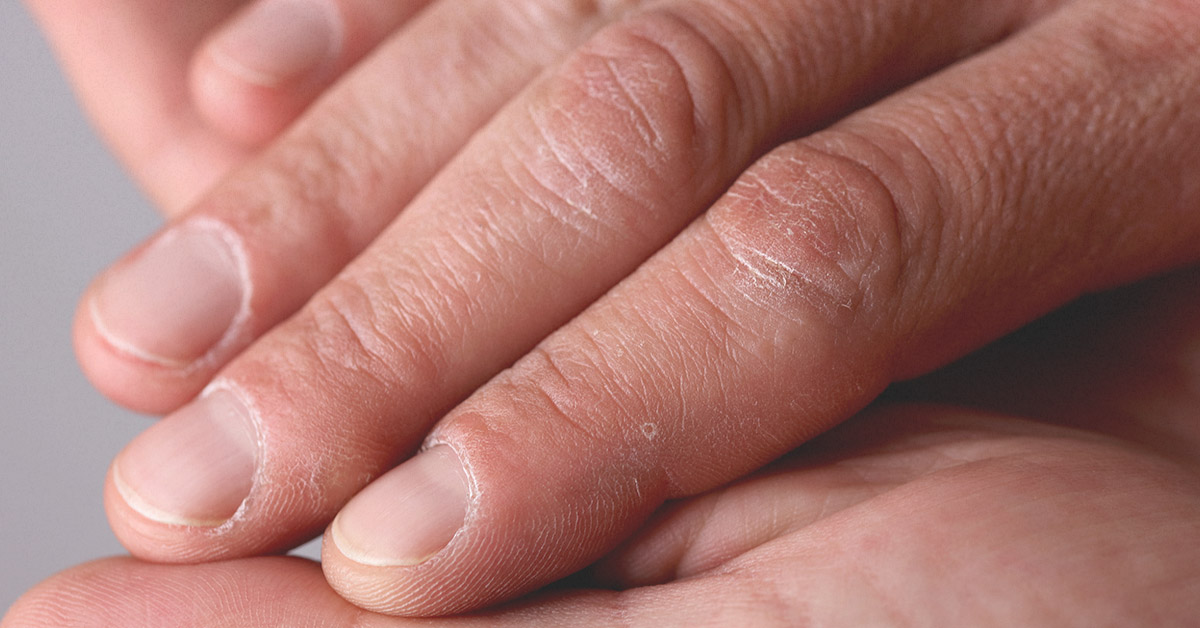 No Moons on Fingernails: What Does It Mean?