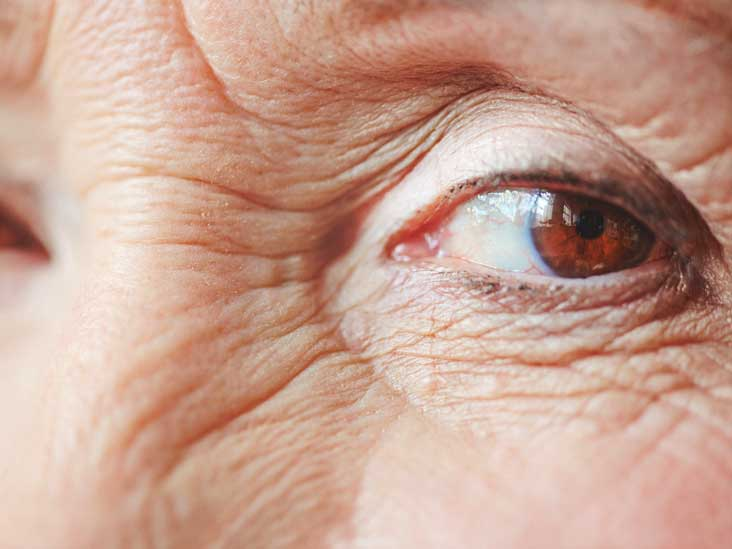 Red Rings Around Eyes: Lids, Sockets, Toddler, Symptoms, and