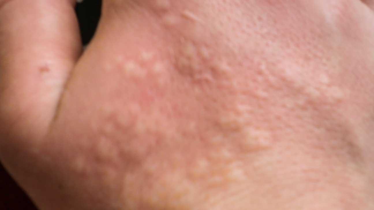 numbness itching and bumps following bikini wax nerve damage