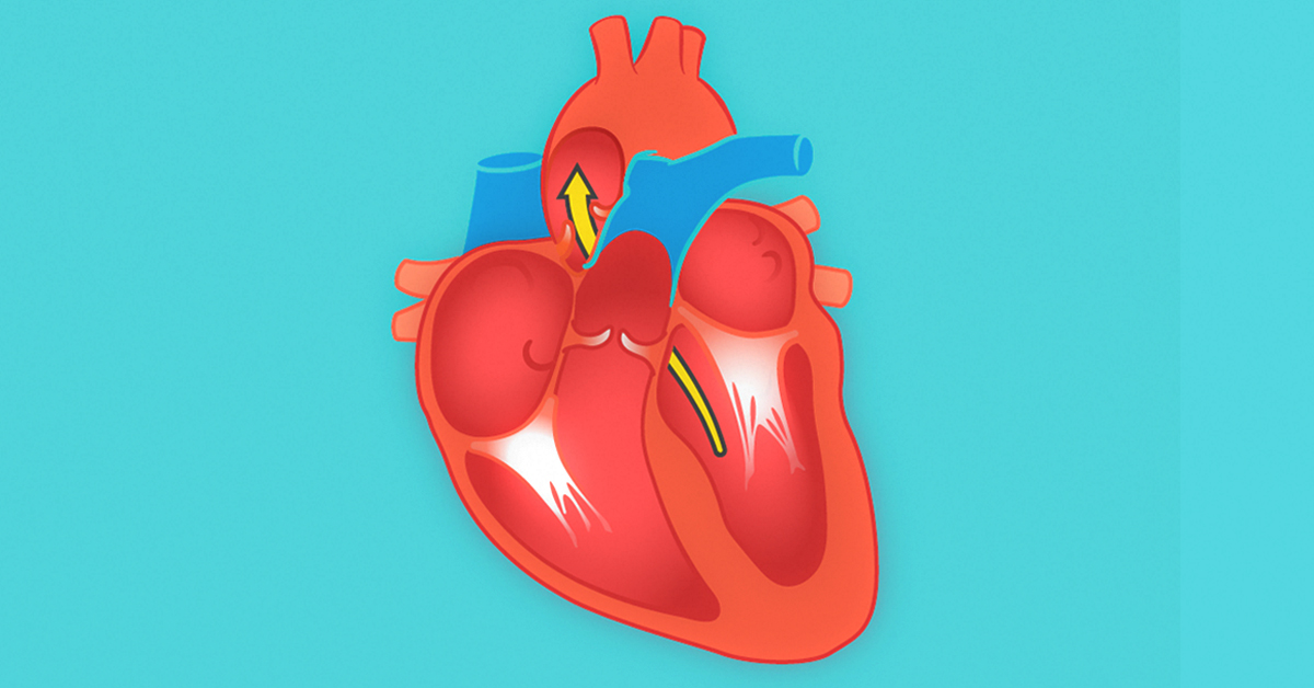 End-Diastolic Volume: What It Is, Effects, and Conditions