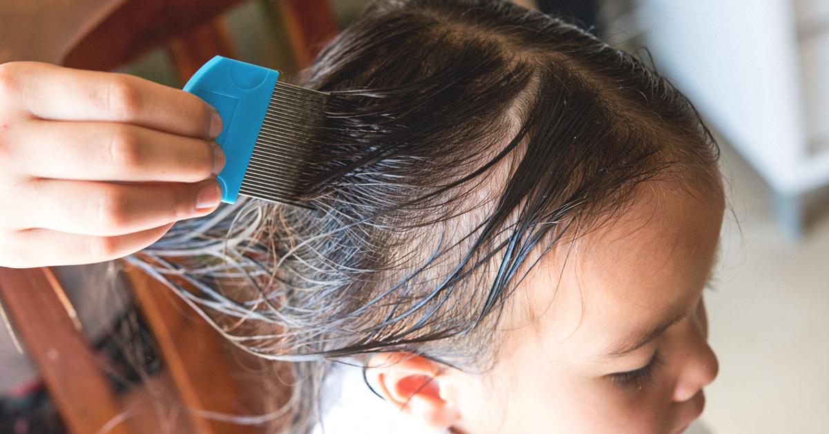 Drug Resistant Super Lice Symptoms Treatment And Prevention