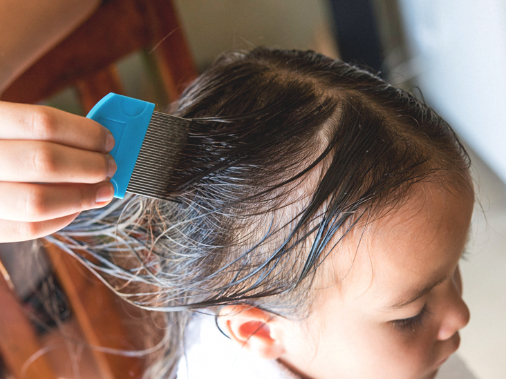 Coconut Oil For Lice Does It Work And How To Use It