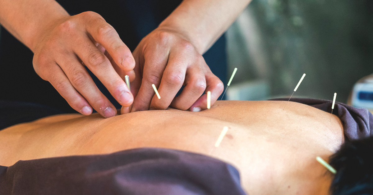 Promoting Acupuncture Therapy Services