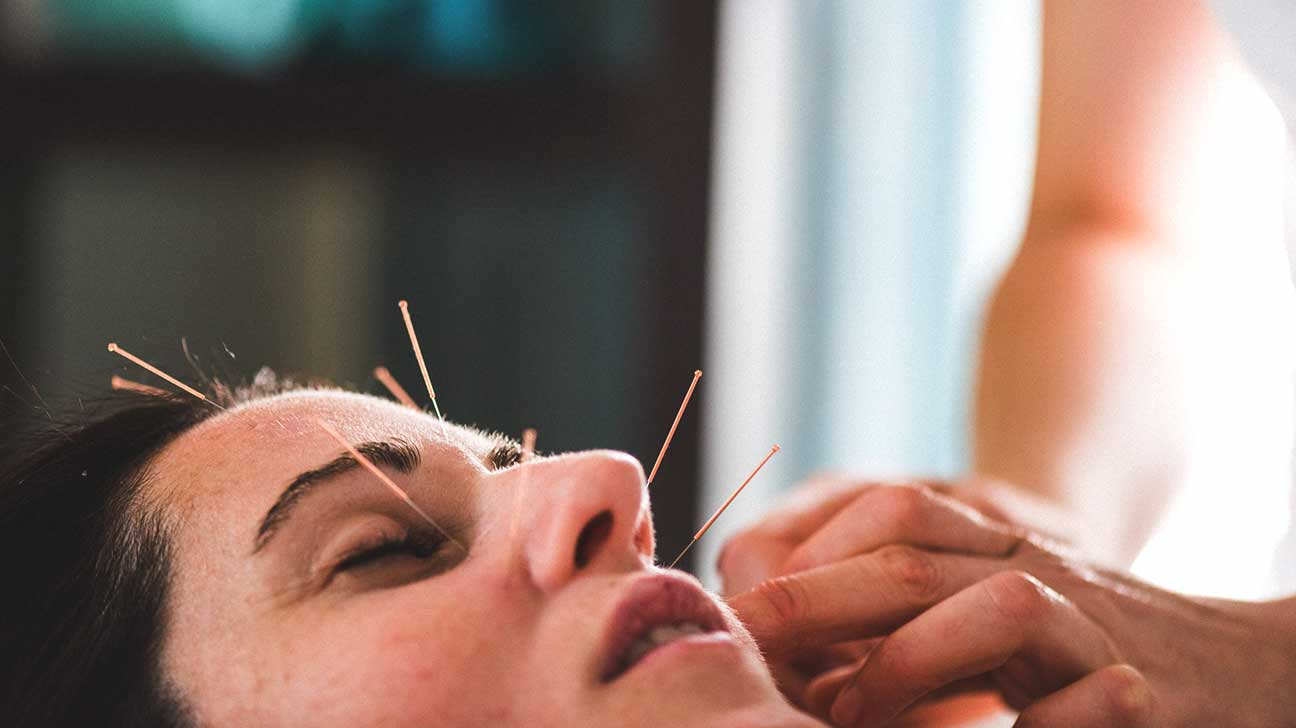 Here's What You Need To Know Before Going For Your First Acupuncture Session