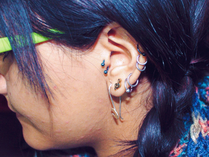 Industrial Piercing Infection Symptoms Treatment Prevention More