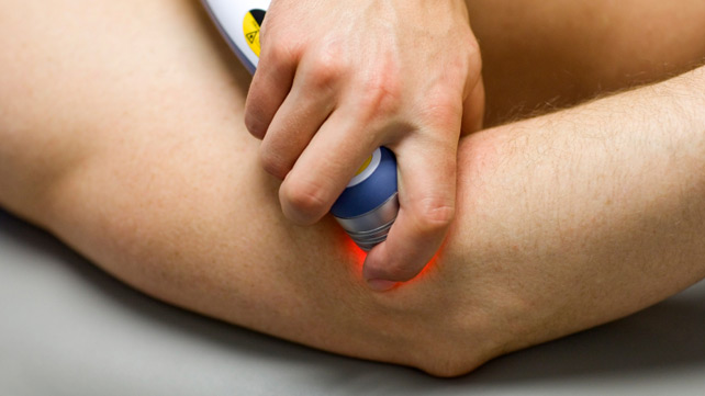 Image result for cold laser therapy