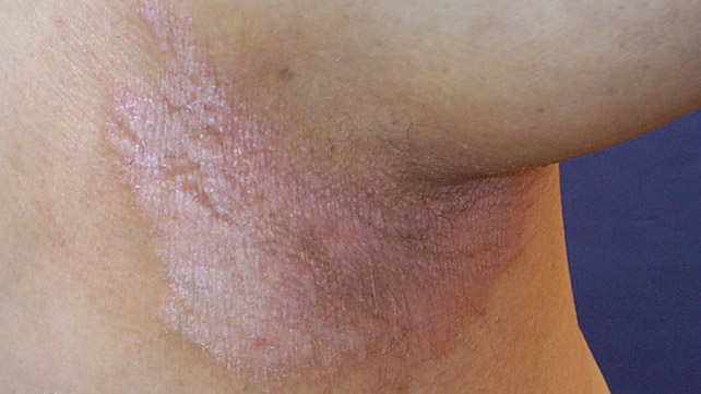 Inverse psoriasis is the most common type of psoriasis in the genital area 2