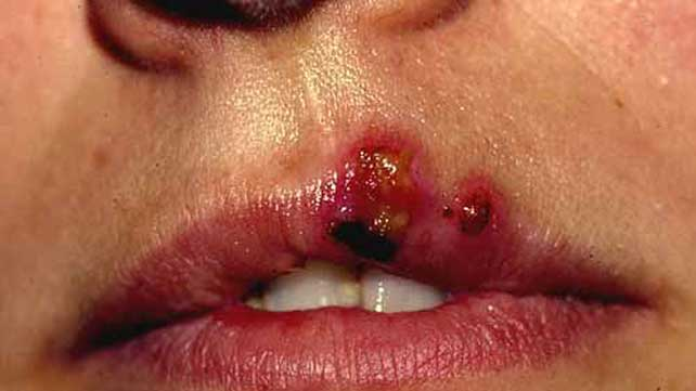 stomatitis information