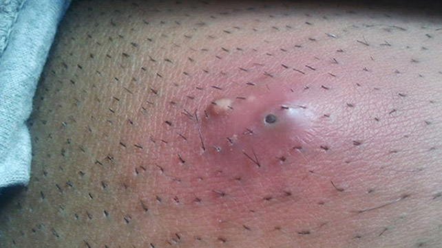 Infected Ingrown Hair: Pictures, Treatment, Removal, and More