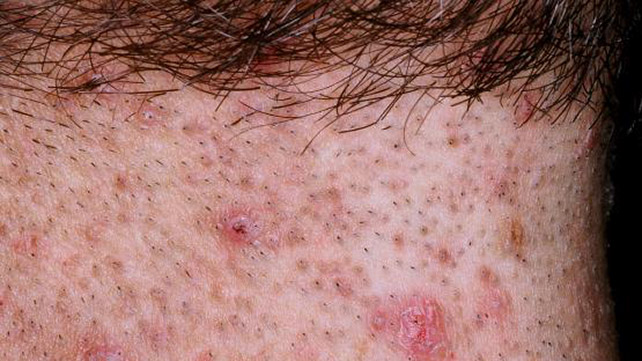 infected ingrown hair pictures treatment removal and more