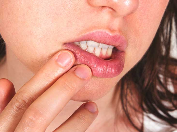 Cold Sore Stages Identification And Treatment