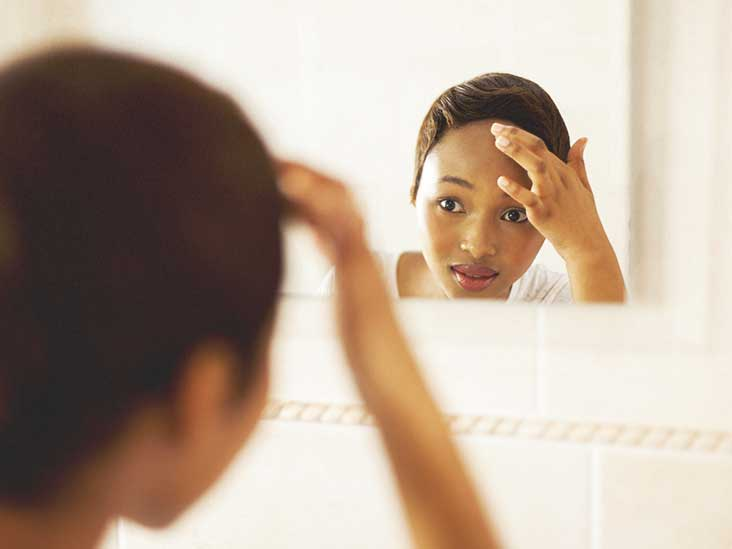 Forehead Acne: Causes, Treatment, and More