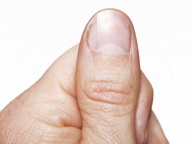 thumb nail ingrown