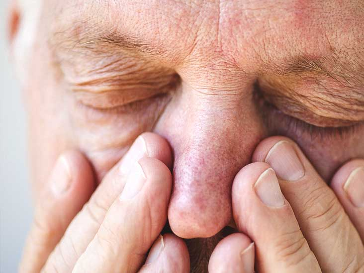 Ethmoid Sinusitis Causes Symptoms And Diagnosis