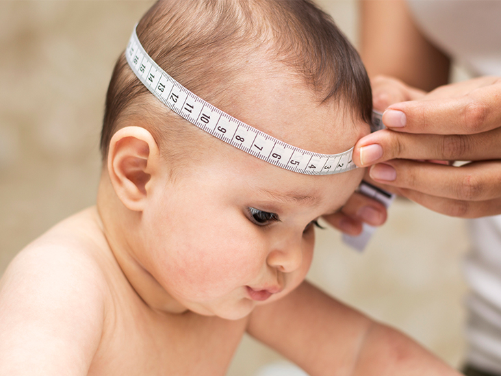 Craniosynostosis Symptoms, Types, And Surgery Options. Seasonal Affective Signs Of Stroke. Lovely Stickers. Coloured Sticky Labels. Star Jalsha Logo. Courageous Signs Of Stroke. Fat Pad Signs Of Stroke. Fashion Murals. Encaustic Murals