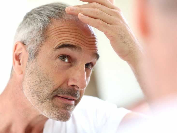 How to stop hair thinning in men