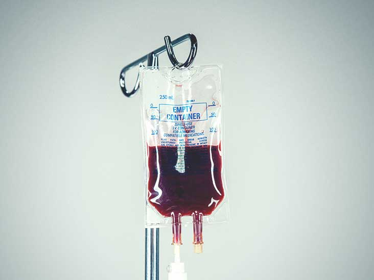 Blood Transfusions: What to Expect and How Long They Last