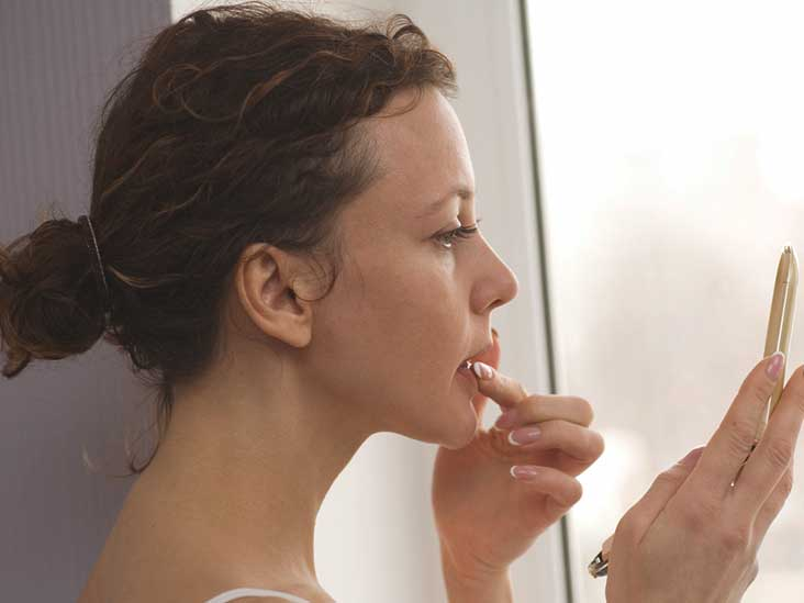 When Does A Cold Sore Stop Being Contagious Plus Tips For Prevention